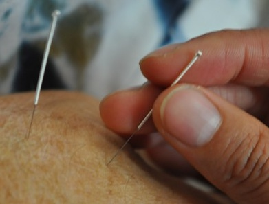 Hand with Needles